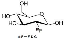 18ffluoro_deoxy_glucose